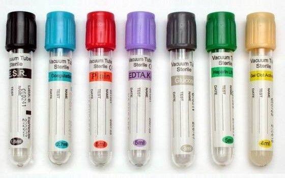 Tubos De Muestras Para Laboratorio Prevenci 243 N En Salud